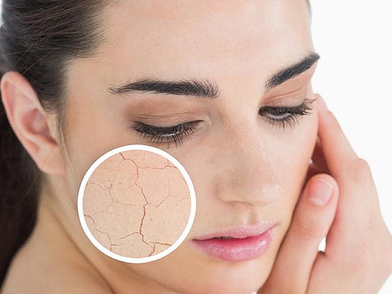 Da khô giúp bạn biết được làn da của mình đang dần bị lão hóa