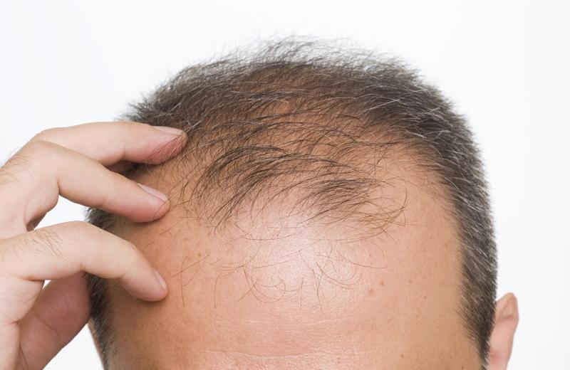 Hút thuốc lá dẫn tới hói đầu và bạc tóc