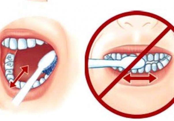 Đánh răng theo chiều ngang