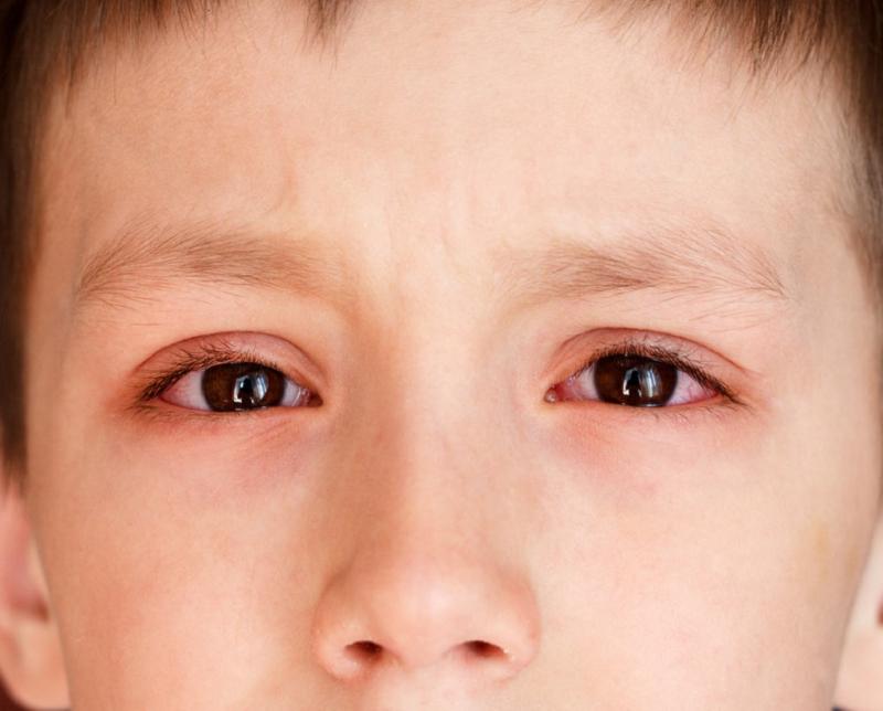 Đau mắt đỏ ở trẻ