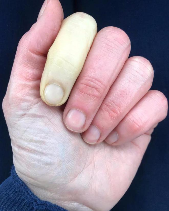 Đau và bị phù ngón tay