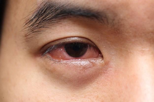 Không nên đeo kính áp tròng khi ngủ