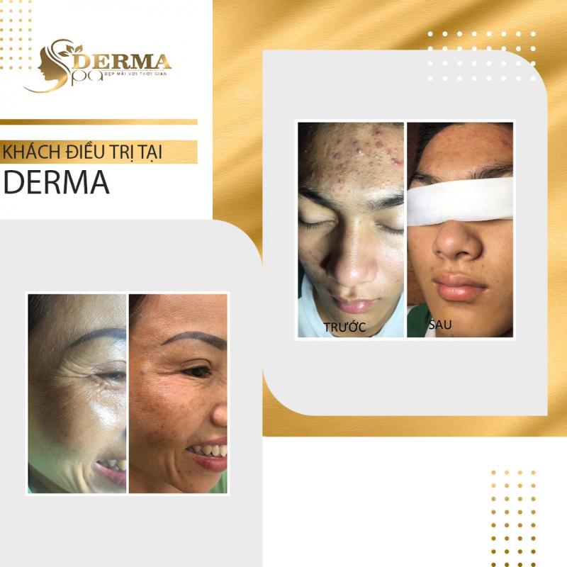 Derma Spa