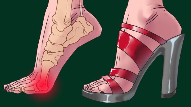 Một trong những tác hại của giày cao gót có thể kể đến là căn bệnh về khớp
