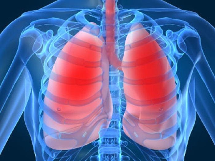 Điều trị tốt các bệnh về phổi