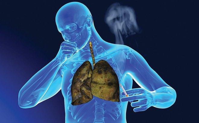 Bệnh về phổi gây ho nhiều sẽ làm tăng nguy cơ mắc trĩ