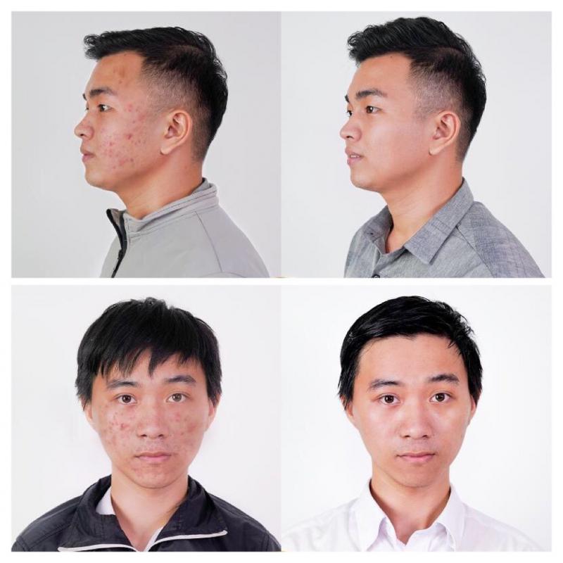 Hình ảnh khách hàng trước và sau khi điều trị mụn tại Viện thẩm mỹ DIVA
