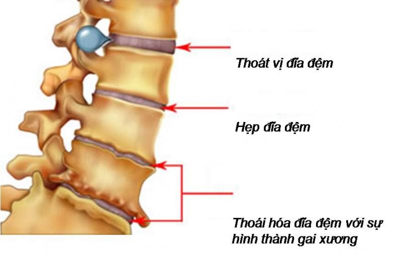 Virut của thoát vị đĩa đệm ảnh hưởng đến xương khớp