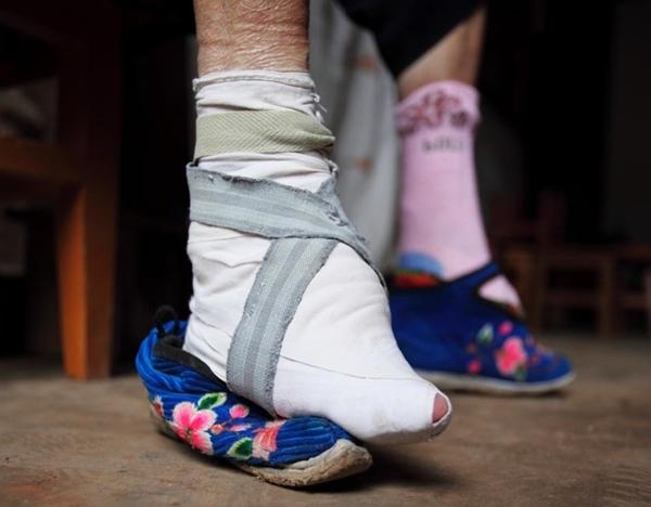 Để có thể đeo vừa những đôi giày sen, phụ nữ Trung Quốc thời bấy giờ phải bó chân
