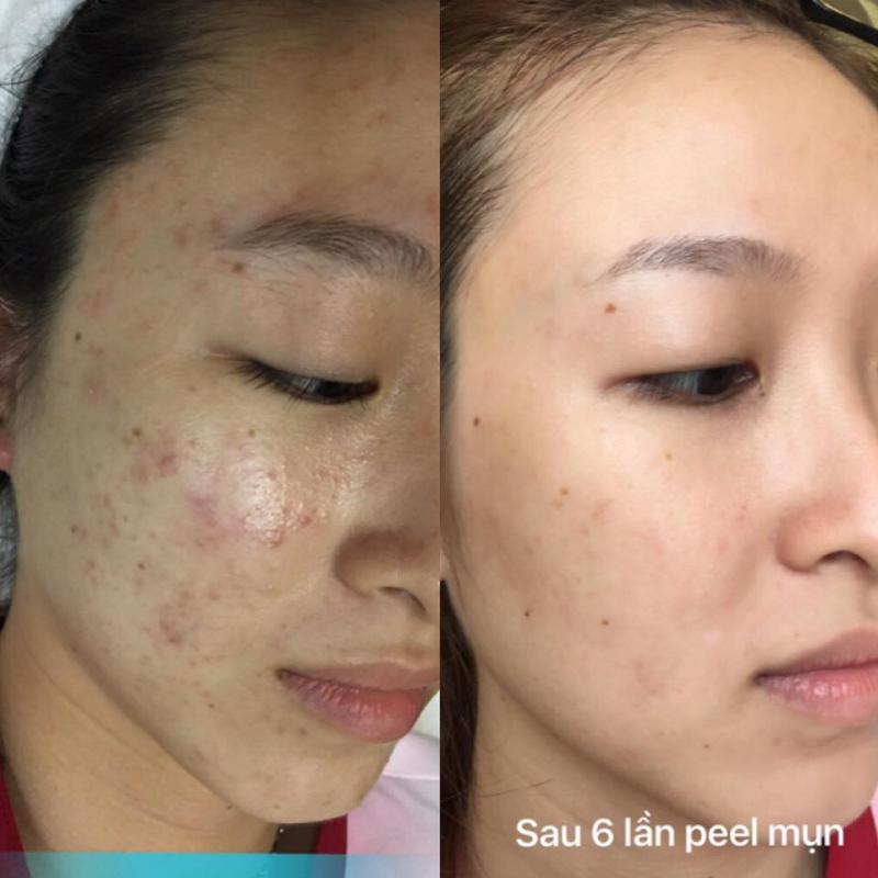 Top 5 Spa chăm sóc da mặt tốt nhất tại quận 8, TP. HCM
