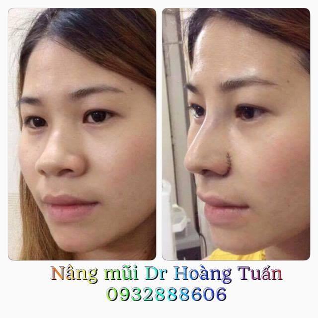 Dr Hoàng Tuấn