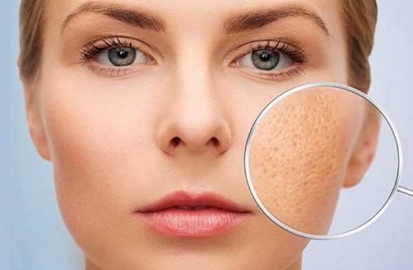 Rau răm giúp da kích thích sản sinh tế bào da mới, làm đầy các lỗ chân lông và bề mặt da gồ ghề