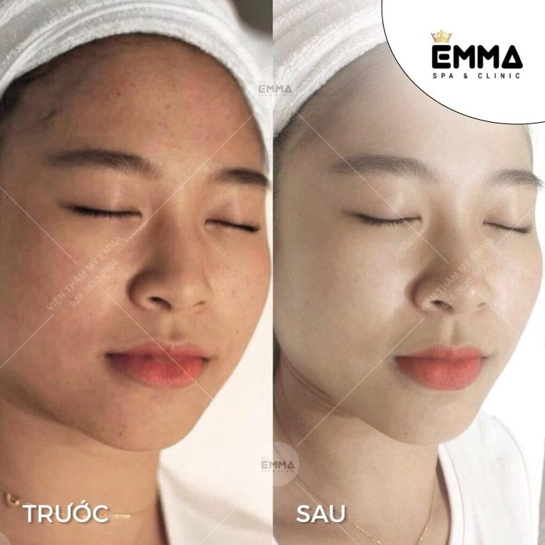 Emma Spa & Clinic