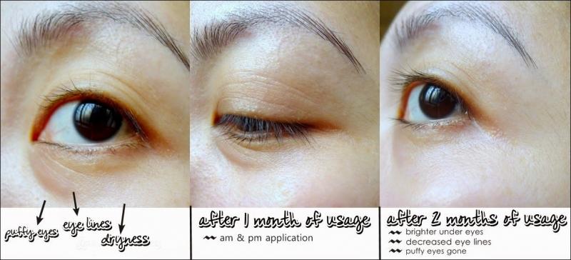 Review Estée Lauder Advanced Night Repair Eye Synchronized Complex