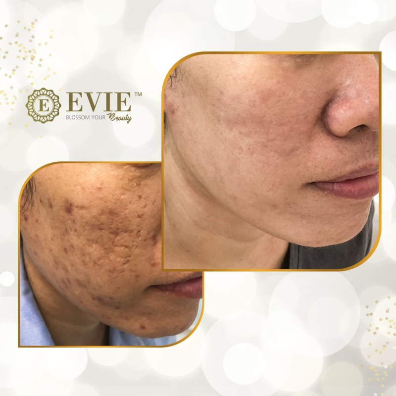 Evie Clinic & Spa - Phòng khám chuyên khoa Da liễu Công nghệ cao