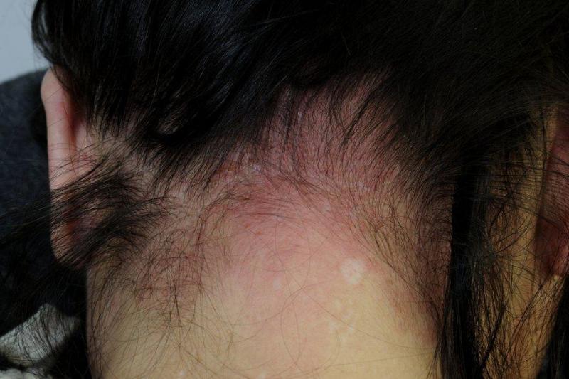 Đi ngủ khi tóc còn ướt dễ gây kích ứng da đầu