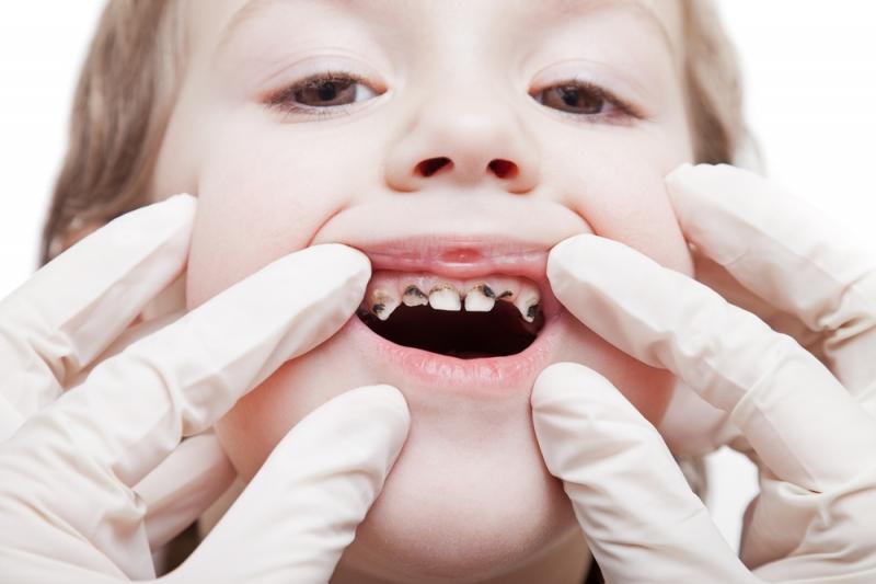 Gây sâu răng