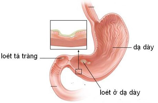 Gây tổn thương dạ dày