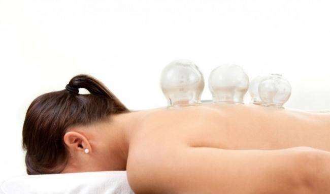 Giác hơi trị đau lưng tác dụng