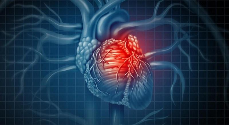 Tinh bột nghệ có tác dụng giảm nguy cơ bệnh tim