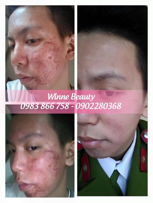 Có rất nhiều khách hàng đã trị dứt điểm mụn khi đến với Giang Winnie Beauty & Spa