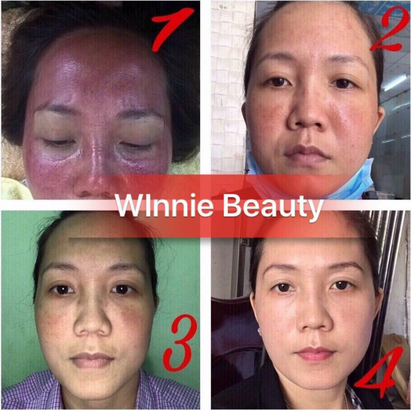 Giang Winnie Beauty & Spa