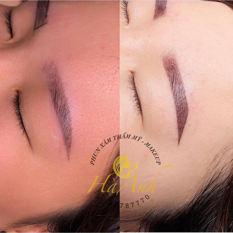Hà Anh Beauty Spa