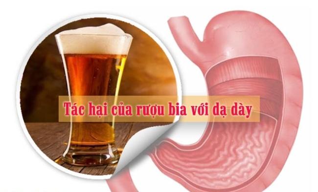 Uống nhiều rượu bia, sẽ kích thích tiết ra lượng acid nhiều khiến niêm mạc dạ dày bị tổn thương