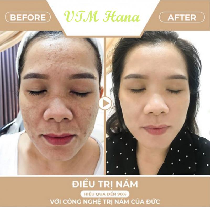 Hana Spa - Tây Ninh