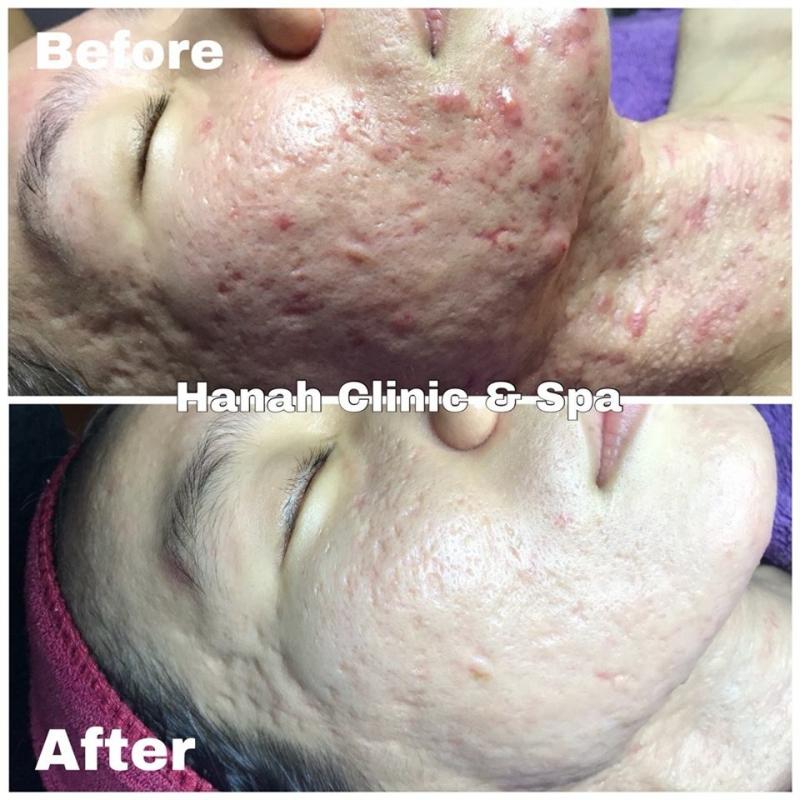 Hanah Clinic - Spa