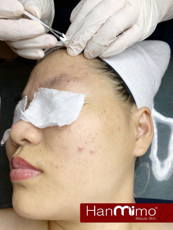 Hanmimo Beauty Skin