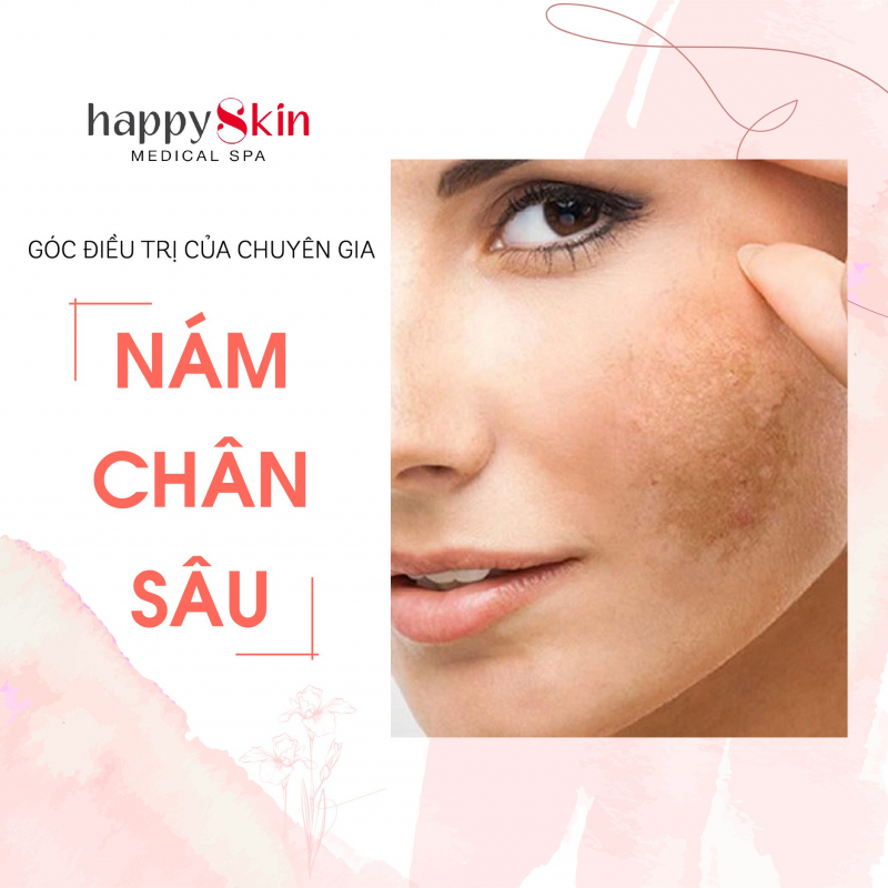 Happy Skin Medical Spa
