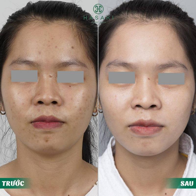 Top 6 Spa trị mụn hiệu quả nhất Quận Phú Nhuận, TP. HCM