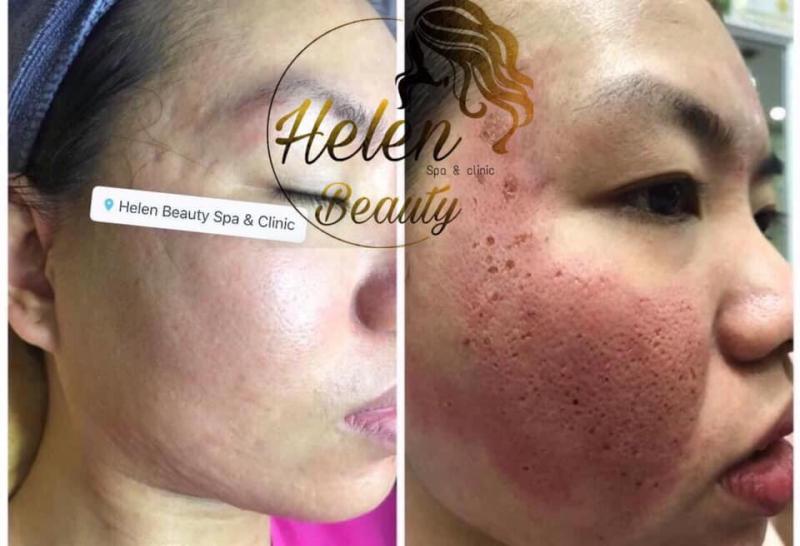 Helen Beauty Spa & Clinic