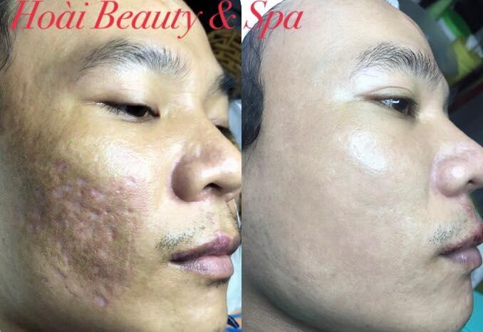 Hoài Beauty Spa