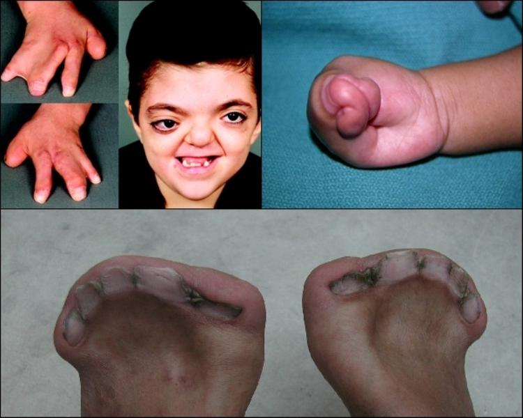 Hội chứng Apert