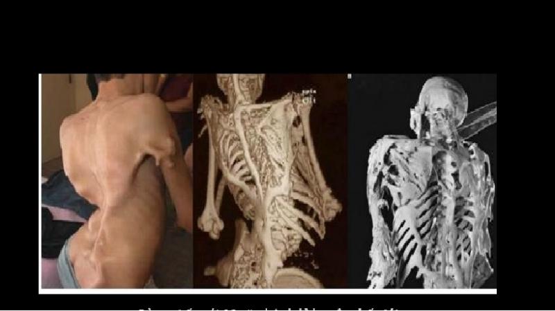 Bệnh xương hóa đá