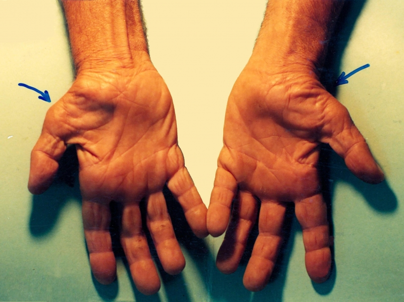 Làm việc nhiều với máy tính và sai tư thế còn dẫn tới hội chứng ống cổ tay