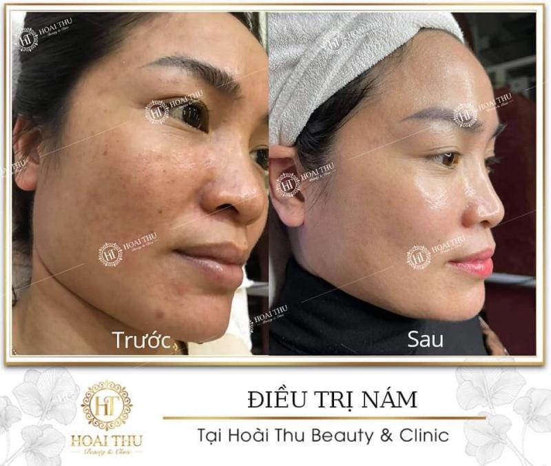 Hoài Thu Beauty & Clinic