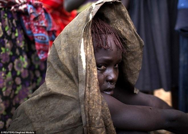 Hủ tục rạch người chữa bệnh ở Nigeria