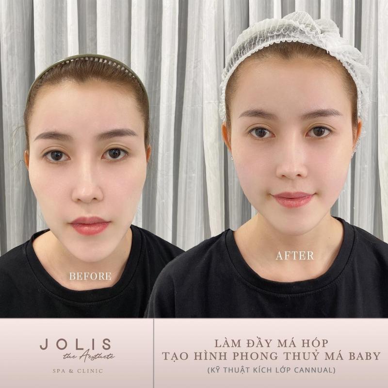 Jolis The Aesthete - Spa & Clinic