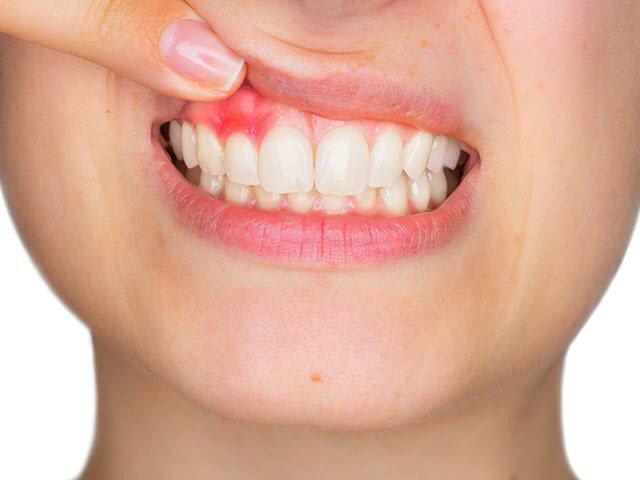 Top 9 kem đánh răng ngăn ngừa viêm nướu hiệu quả nhất hiện nay