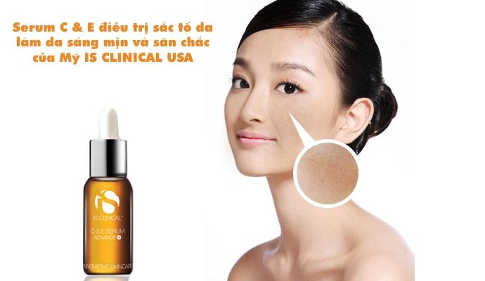 Kem trị nám Is Clinical cải thiện nám da và bảo vệ da