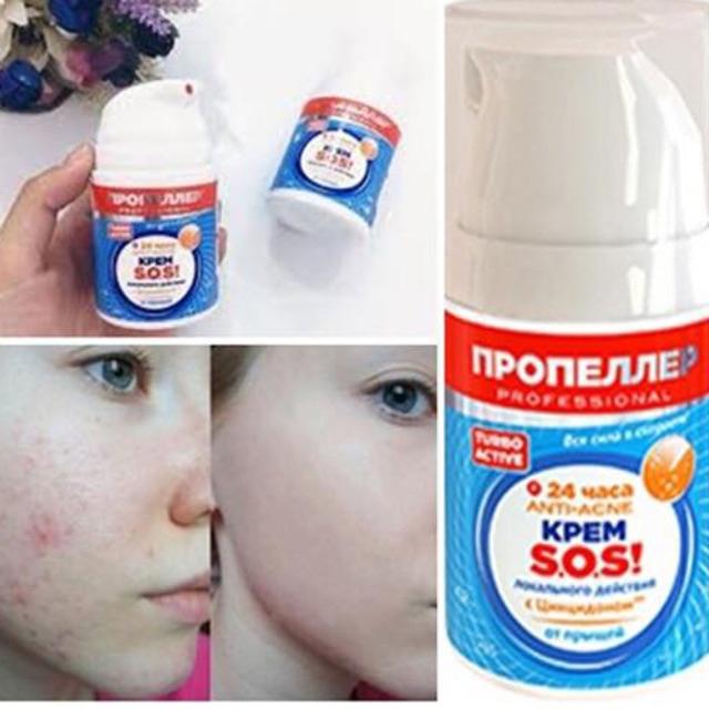 Kem trị sẹo Anti-scar Propeller SOS Cream Russia