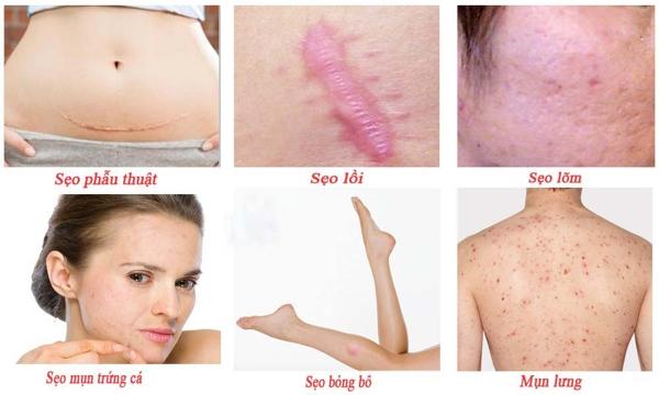 Kem trị sẹo Gentacin 10g Nhật Bản trị được rất nhiều loại sẹo