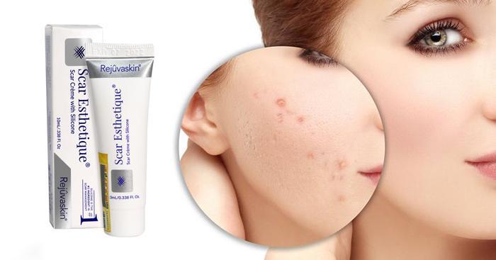 Scar Esthetique Cream được chiết xuất từ các thành phần từ thiên nhiên nên không gây kích ứng da