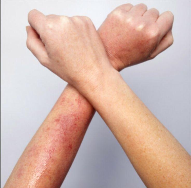 Hãy chú ý những vết ửng đỏ, ngứa ngáy hay châm chích không giảm sau khi waxing