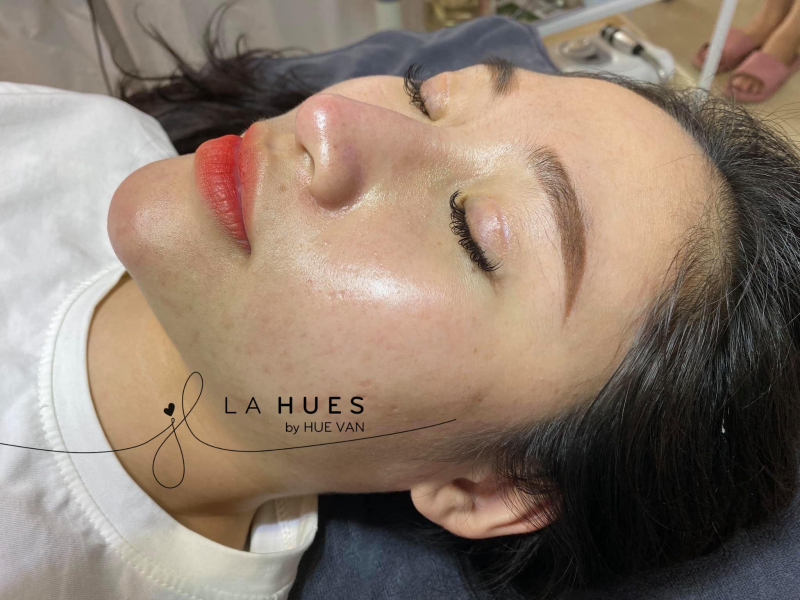 La Hues Spa & Clinic