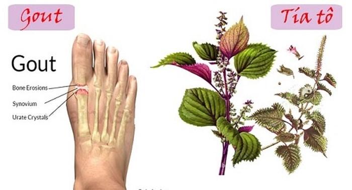 Tía tô với bệnh gút (gout)