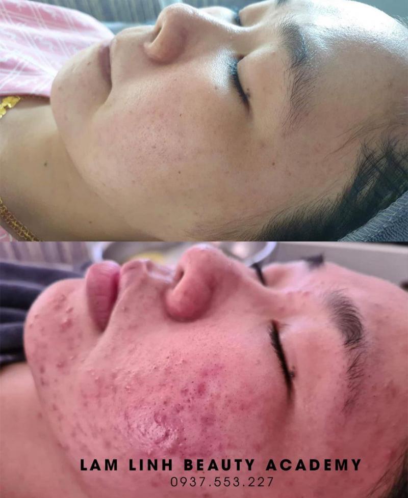 Lam Linh Beauty Spa